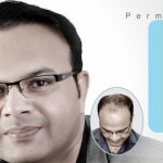 FUE Latest No Touch Technique Hair Transplant In Pakistan