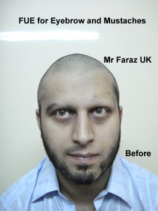 FUE Eyebrow and Eyelash Hair Transplant in Pakistan, by Dr M. Jawad Ch
