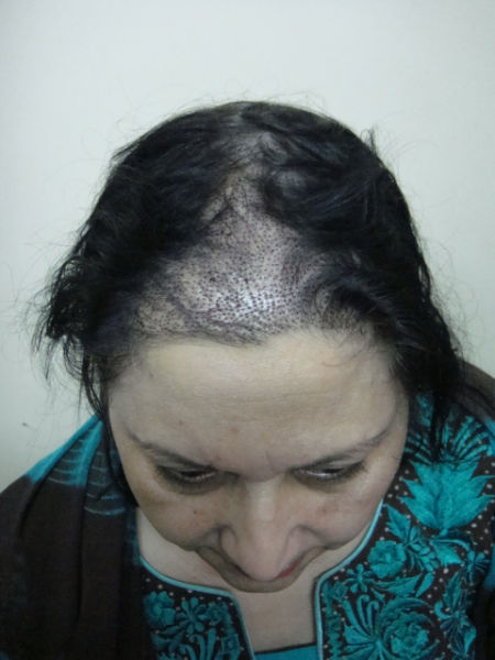 Woman FUE Hair Transplant performed at GHT By Dr M. Jawad Ch.