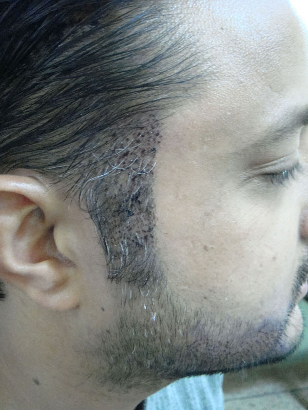 BHT Body Hair Transplant , done by Dr. M. Jawad Ch. in Pakistan